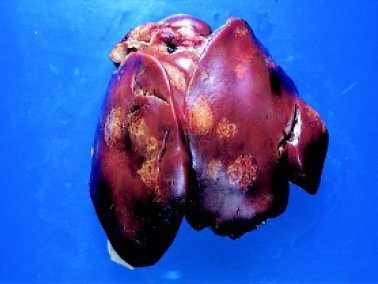 Large, pale areas in the liver of a bird infected with Blackhead (Histomonas meleagridis)